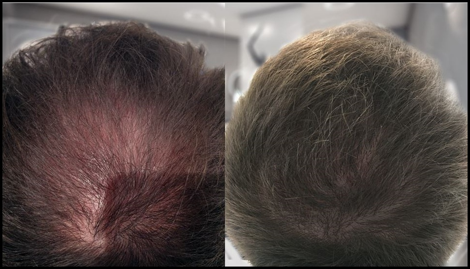 Treating Your Crown With A Hair Transplant
