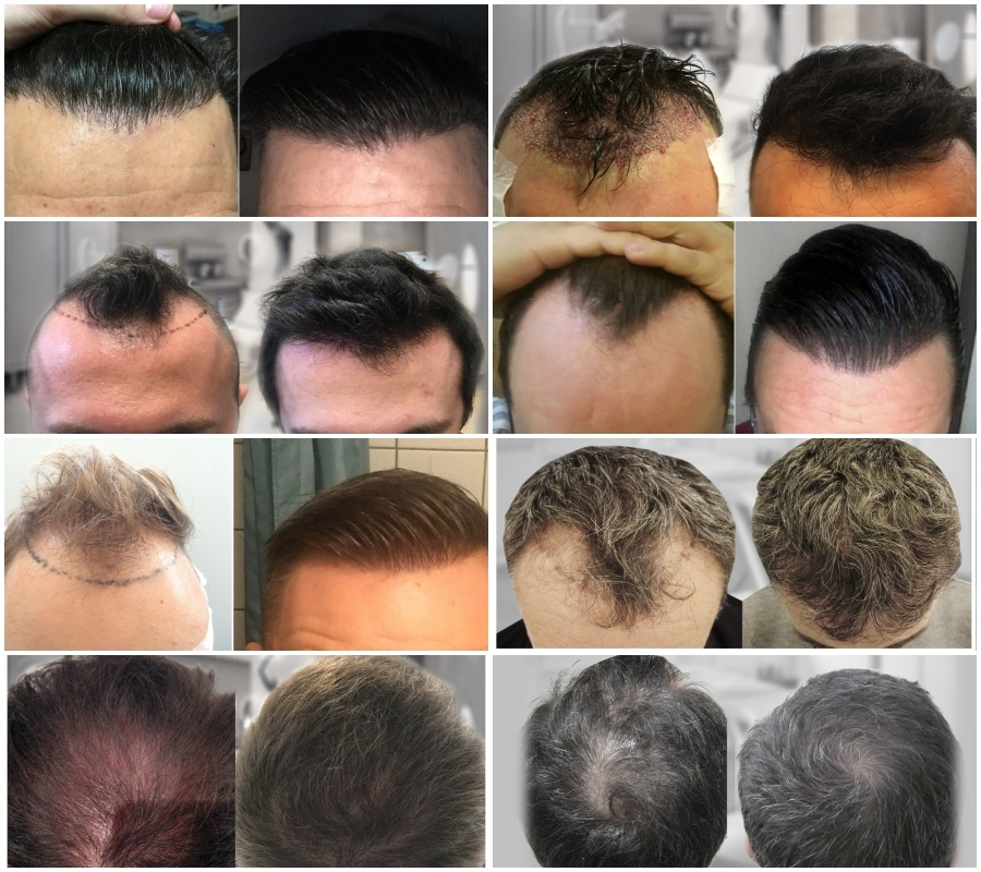 Is the Hair Loss Cure Round The Corner? - Hair Restoration Europe