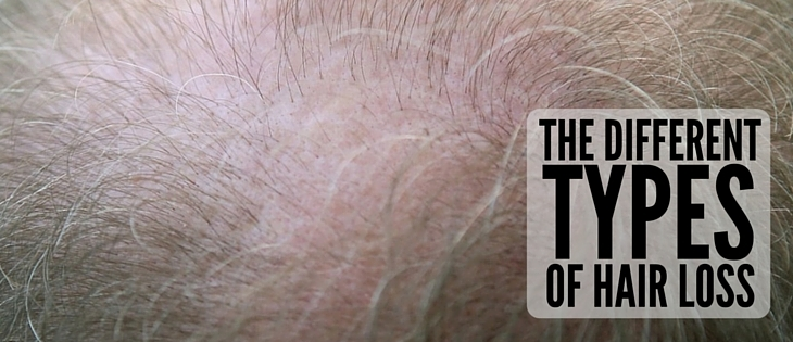 How Many Types of Hair Loss