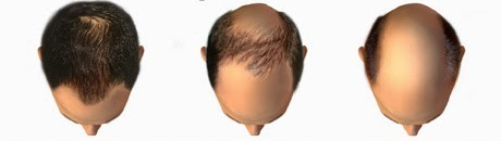 Hair Transplant - How Many Grafts Do I Need