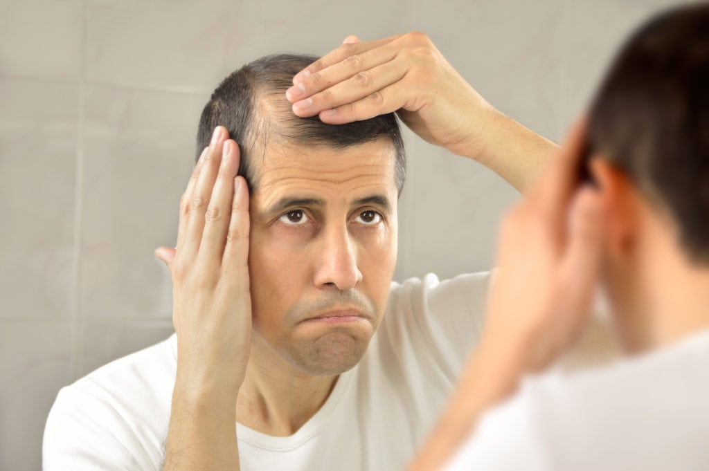Basics About Male Pattern Baldness