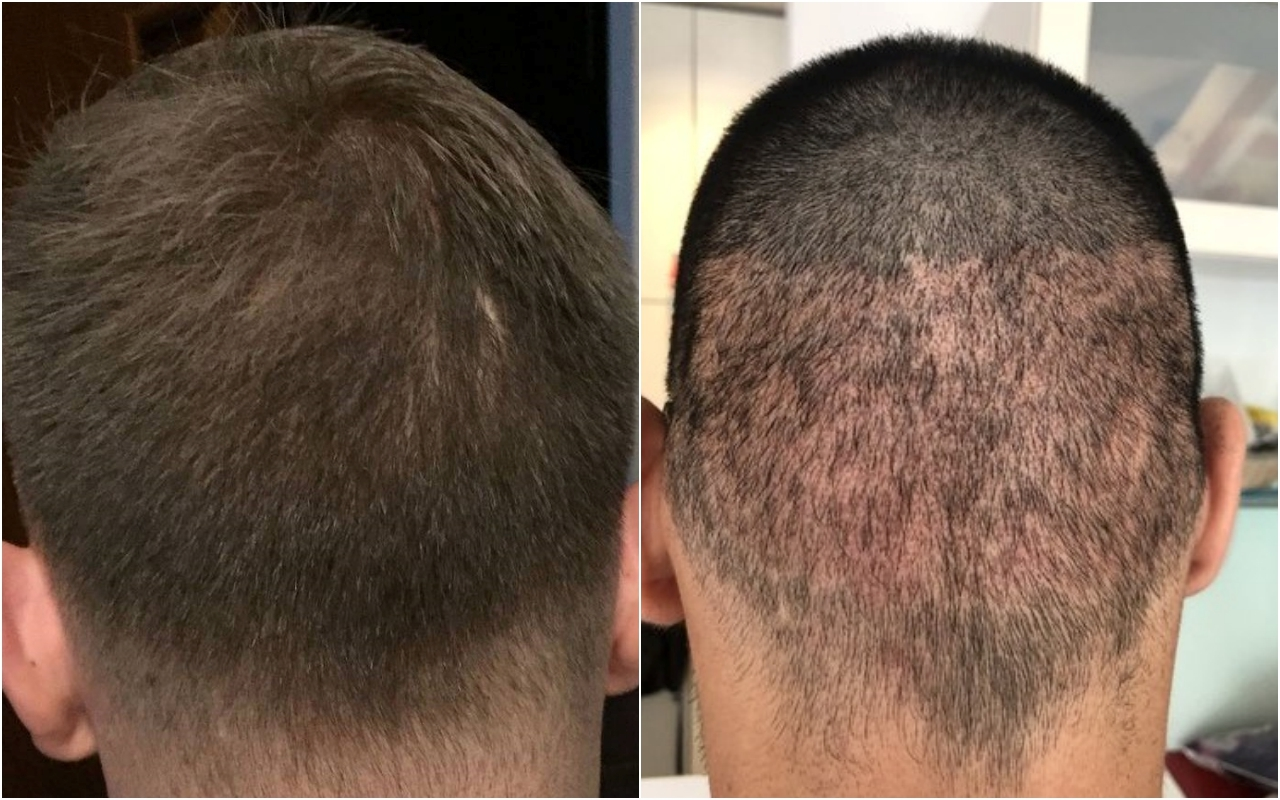 A Scarless Hair Transplant Technique - Hair Restoration Europe