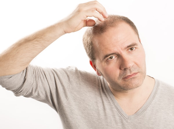 where-to-get-a-hair-transplant