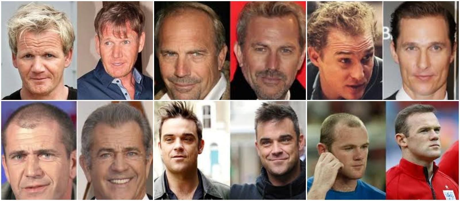 celebrity-hair-transplants
