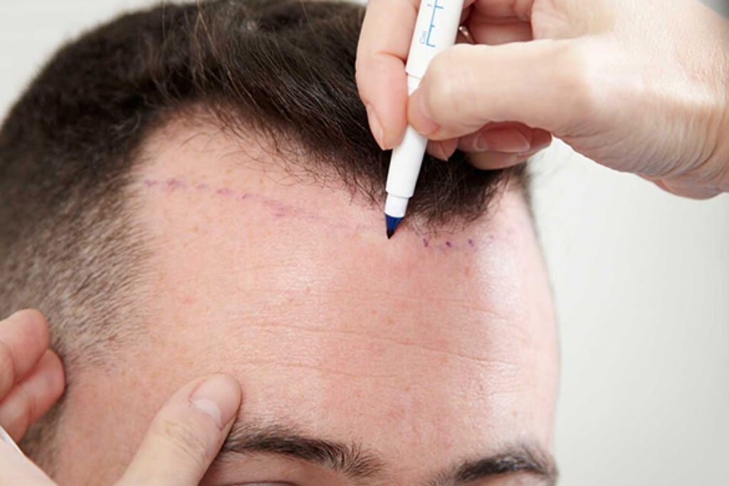hairline-hair transplant-planning