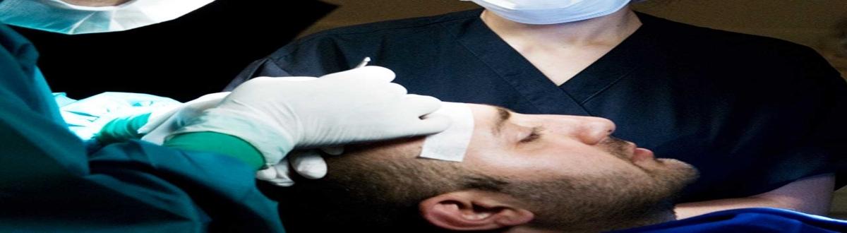 hair-transplant-recipient-sites