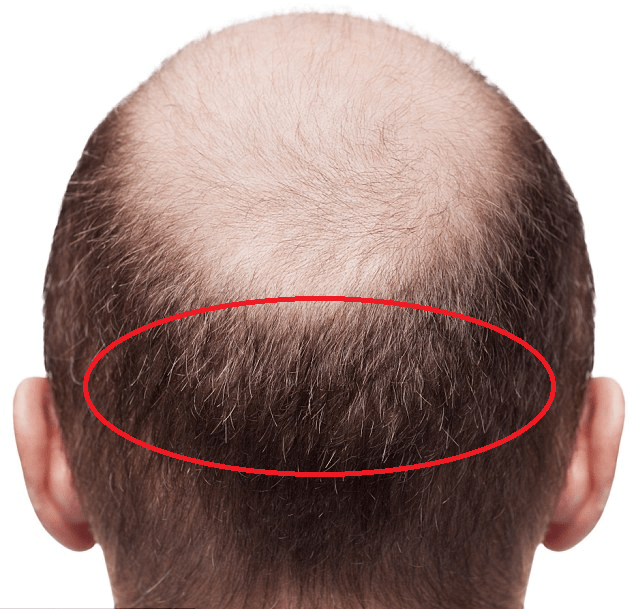 Low-Cost Hair Transplants – means low quality? - Hair Restoration Europe