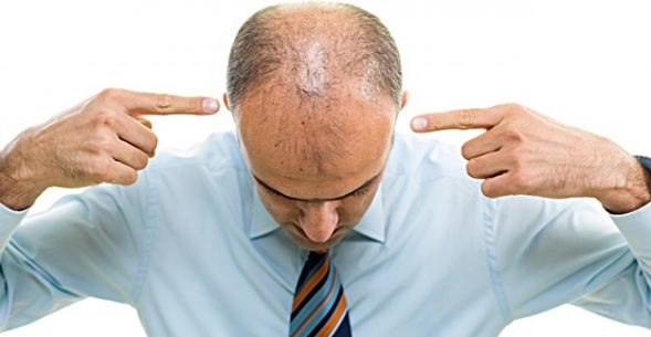 hair loss - unwanted signs of aging
