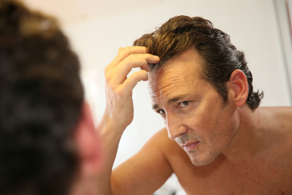 hair loss questions to ask