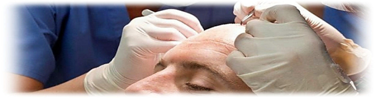 Hair Transplant technical Information