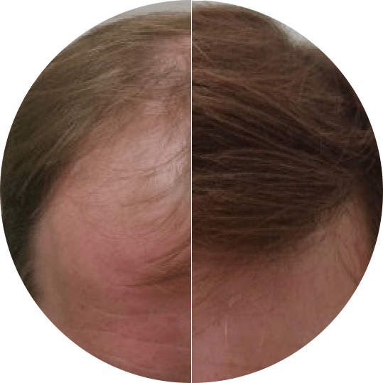 Permanent Hair Transplant Results