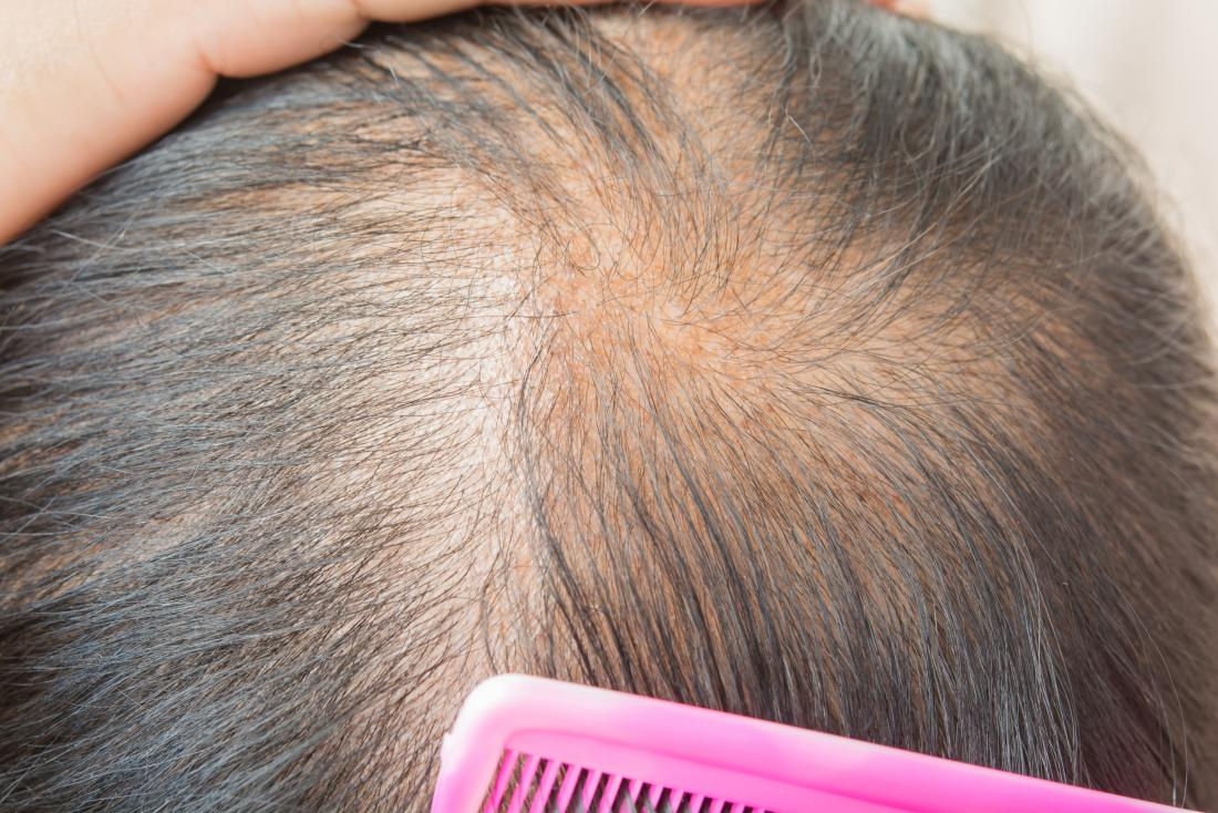 Treatment for diffuse hair loss
