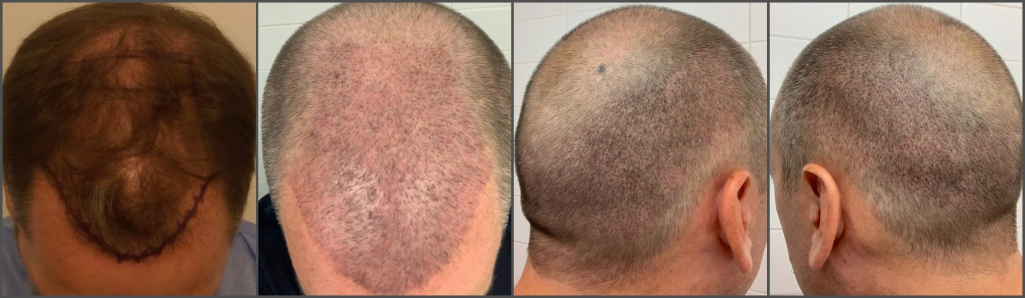 Hair transplant healing post-op